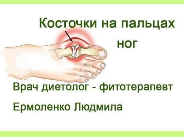 Артрит Пальцев Рук Народные